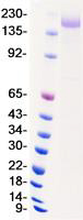 Recombinant SARS-CoV-2 Spike S Protein